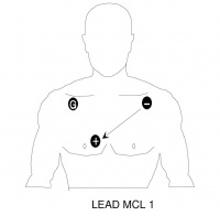 Placement for monitoring Lead MCL I